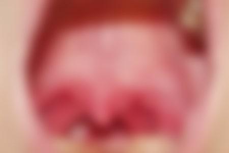 クラミジアの感染者数&初期症状